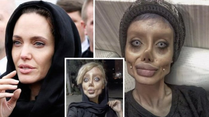 Lakukan Operasi Plastik 50 Kali Demi Mirip Angelina Jolie, Tapi Wajah Remaja Ini Malah Mirip Zombie! Dafunda Gokil