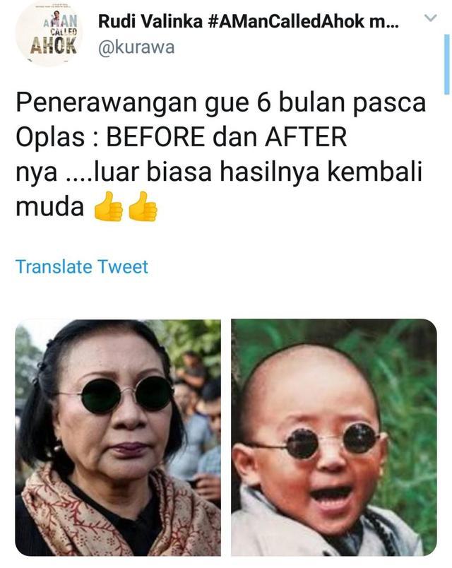 Ratna Sarumpaet Mengaku Bohong, Reaksi Kocak Netizen Ini Bikin Ngakak! Before After