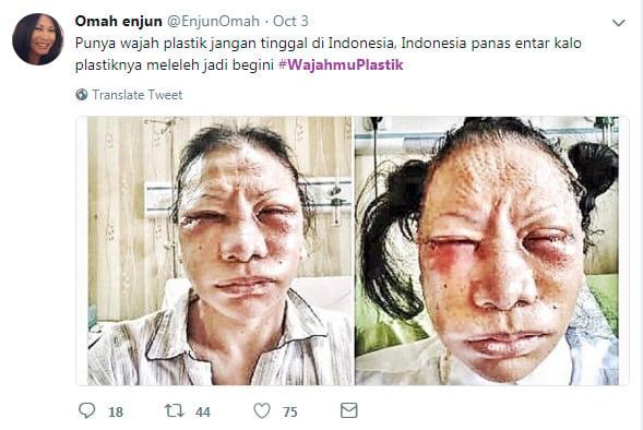 Ratna Sarumpaet Viral, Netizen Ramai Ramai Bikin Tagar #Wajahmuplastik Oplas