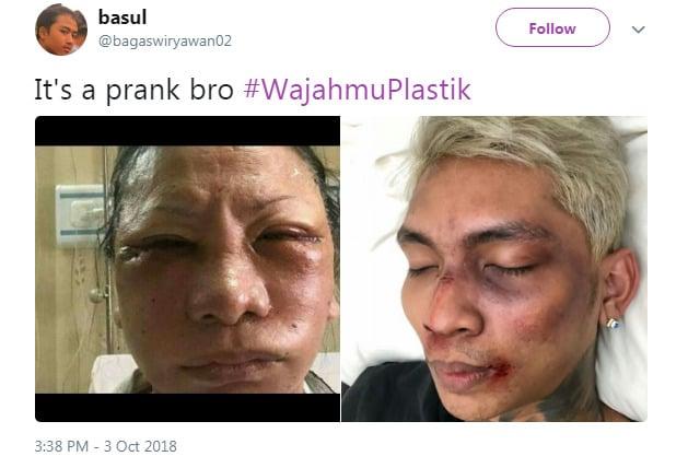 Ratna Sarumpaet Viral, Netizen Ramai Ramai Bikin Tagar #Wajahmuplastik Yang Lex 2